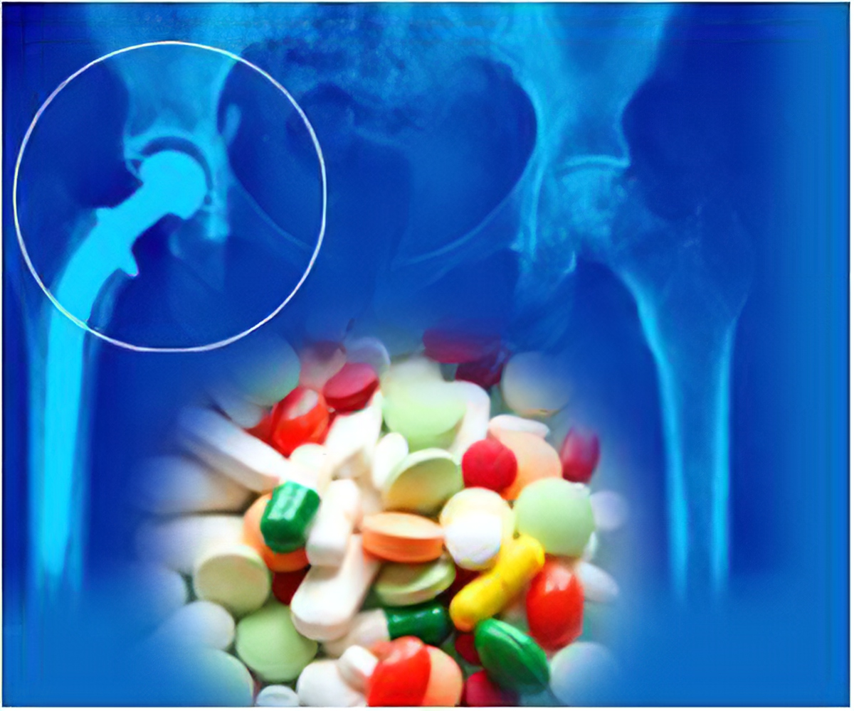 Long Term Use of Indigestion Drugs Increases Risk of Hip Fractures