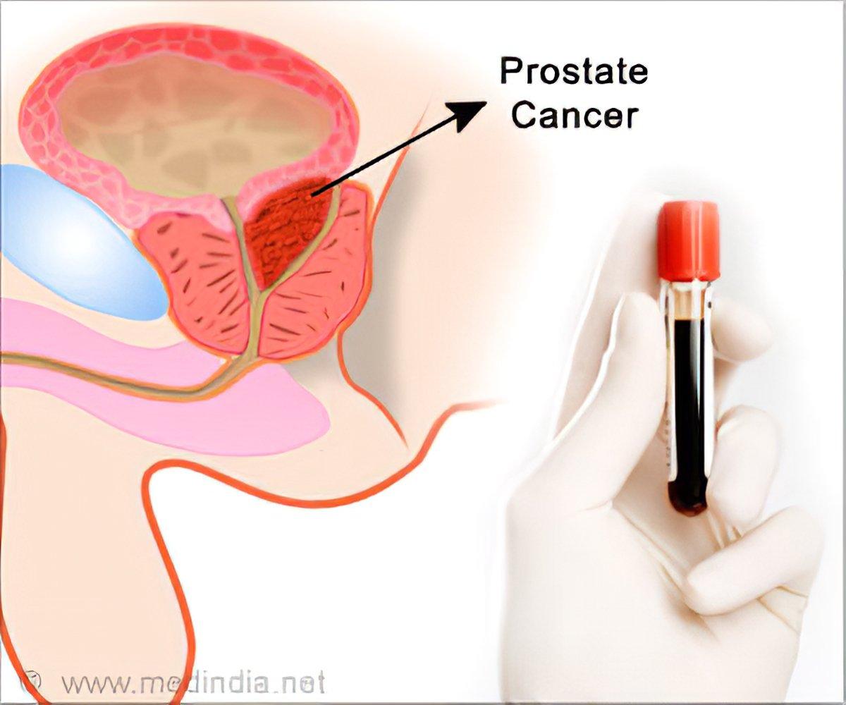 A prosztata transzuretrális reszke rák alatt