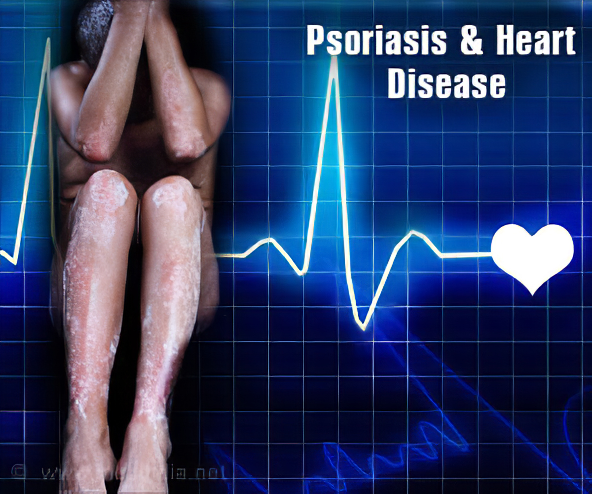 psoriasis cardiac disease)