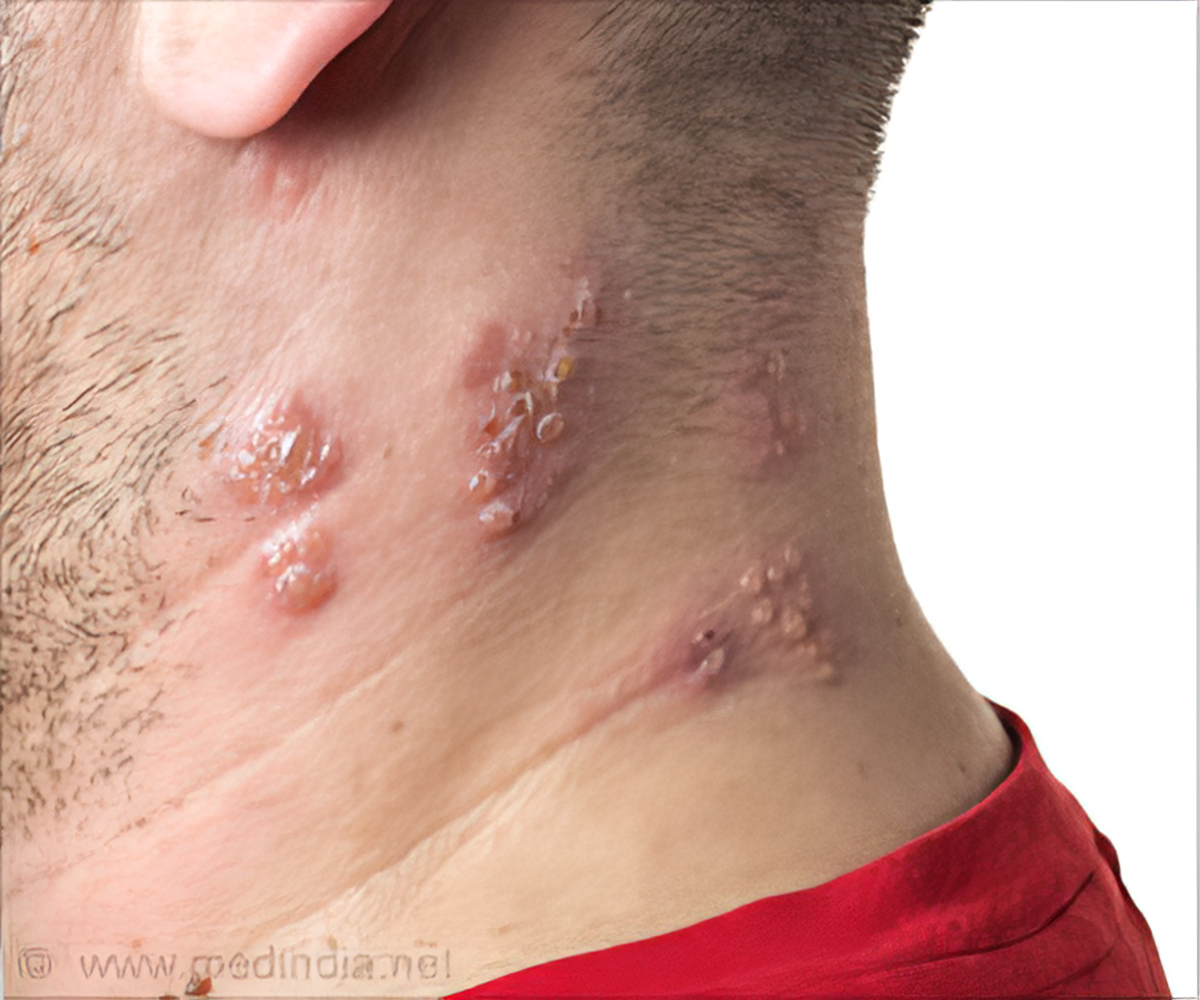 Guidelines for HS Skin Disease Diagnosis Published