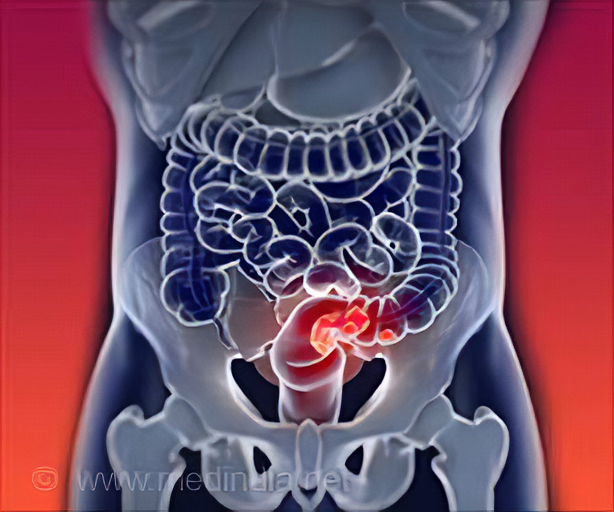 New Colorectal Cancer Vaccine Shows Positive Results in Phase 1 Trial