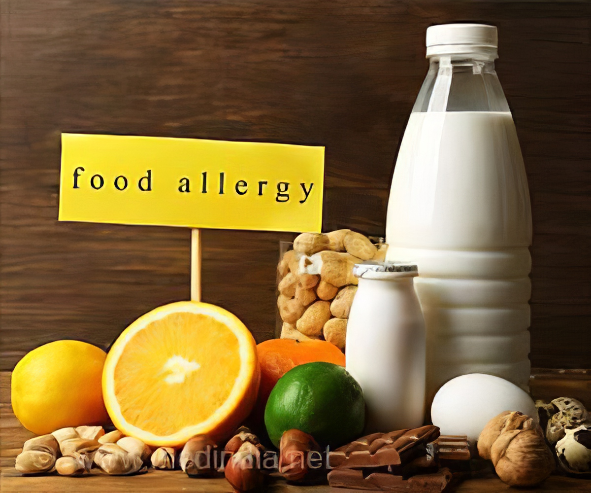Is Autism Linked To Food Allergies >> Food Allergies More Common In Children With Autism