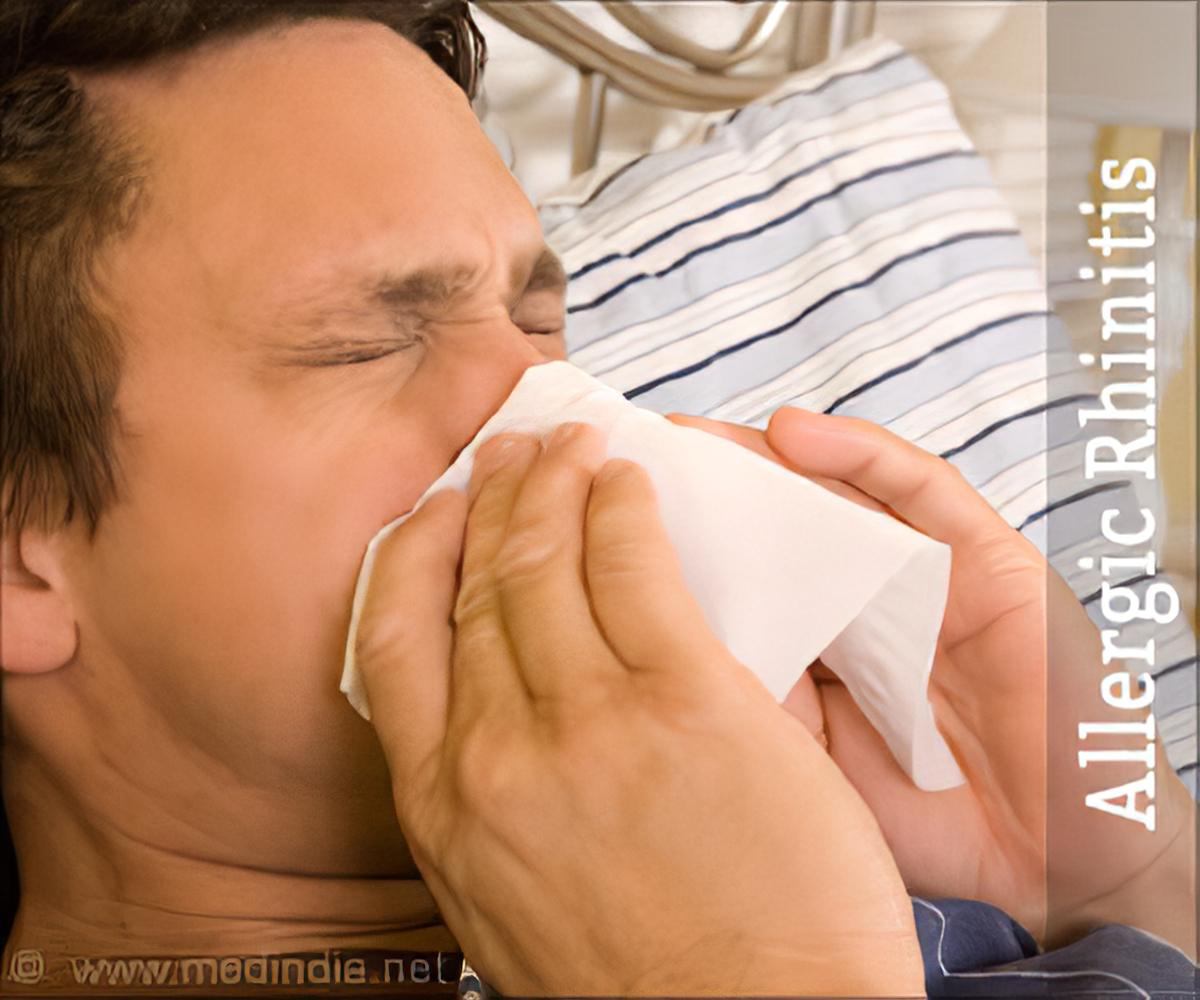 List of drugs/medicine used for Allergic Rhinitis