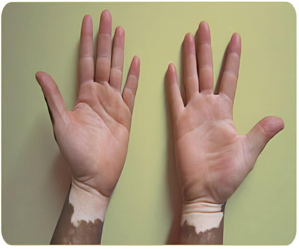 Vitiligo Symptoms Diagnosis Treatment Research Lifestyle
