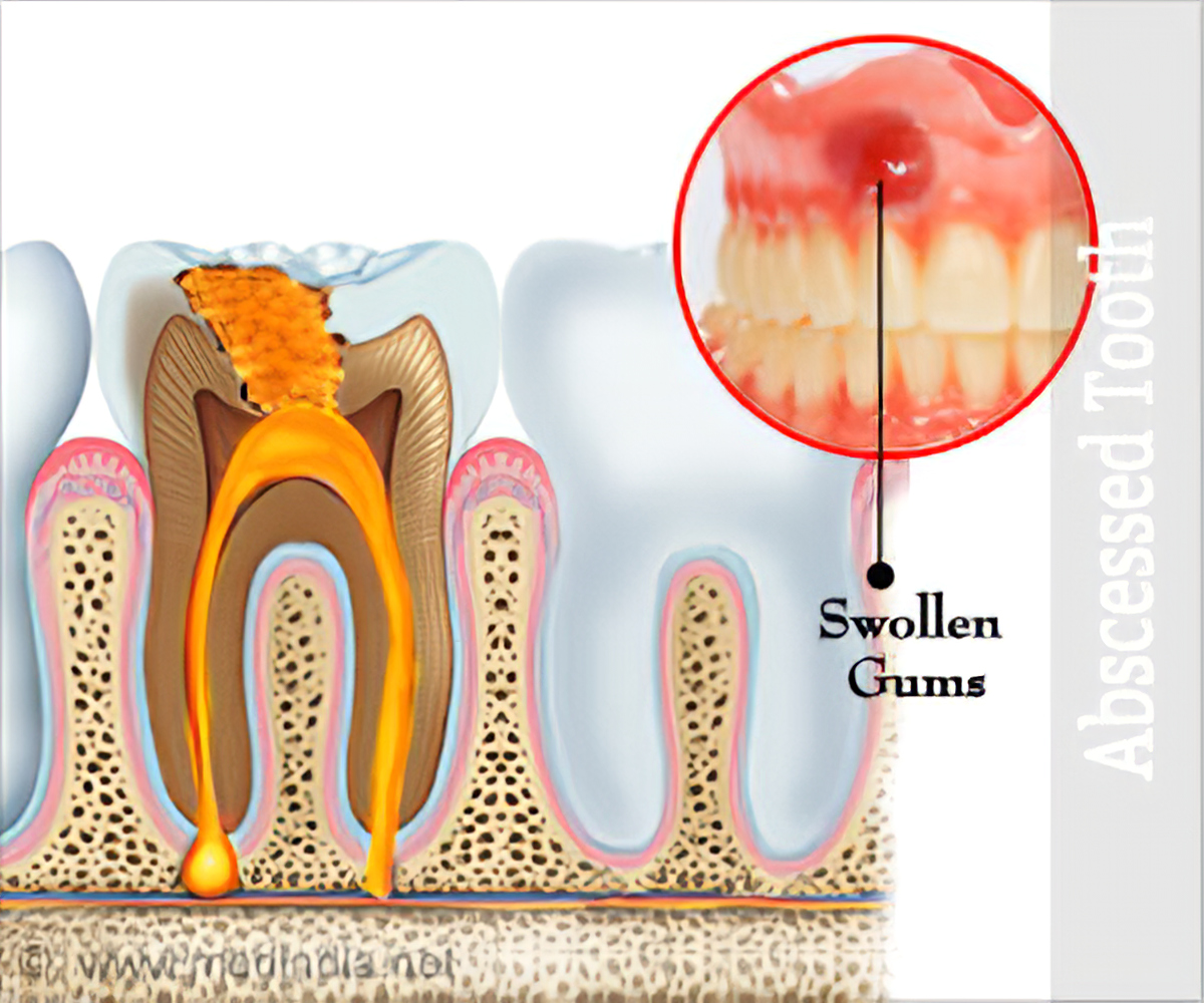 Abscessed Tooth Causes, Signs, Symptoms, Diagnosis ...  |Abscessed Tooth Complications Signs
