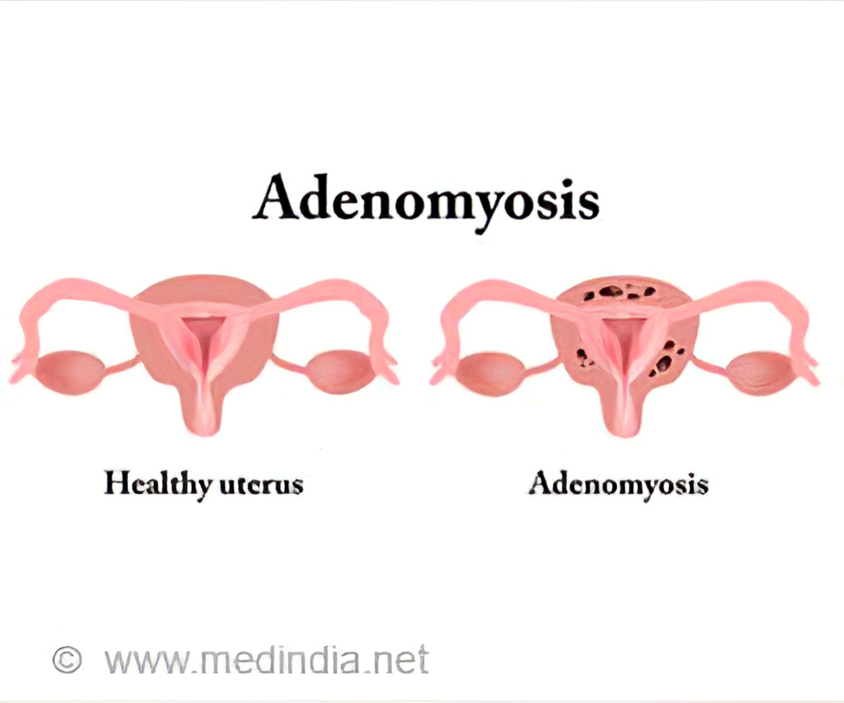 List of drugs/medicine used for Adenomyosis or Bulky Uterus