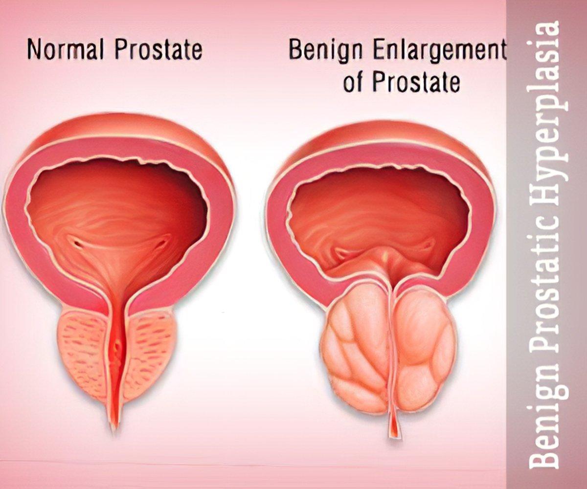 icd 10 benign prostatic hyperplasia