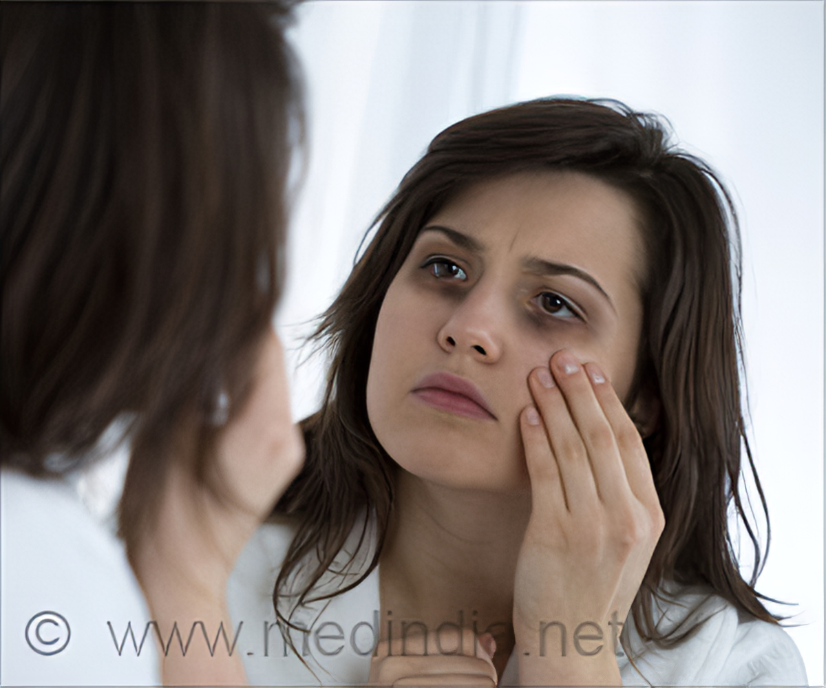 How To Get Rid Of Dark Circles Through Facial Exercise