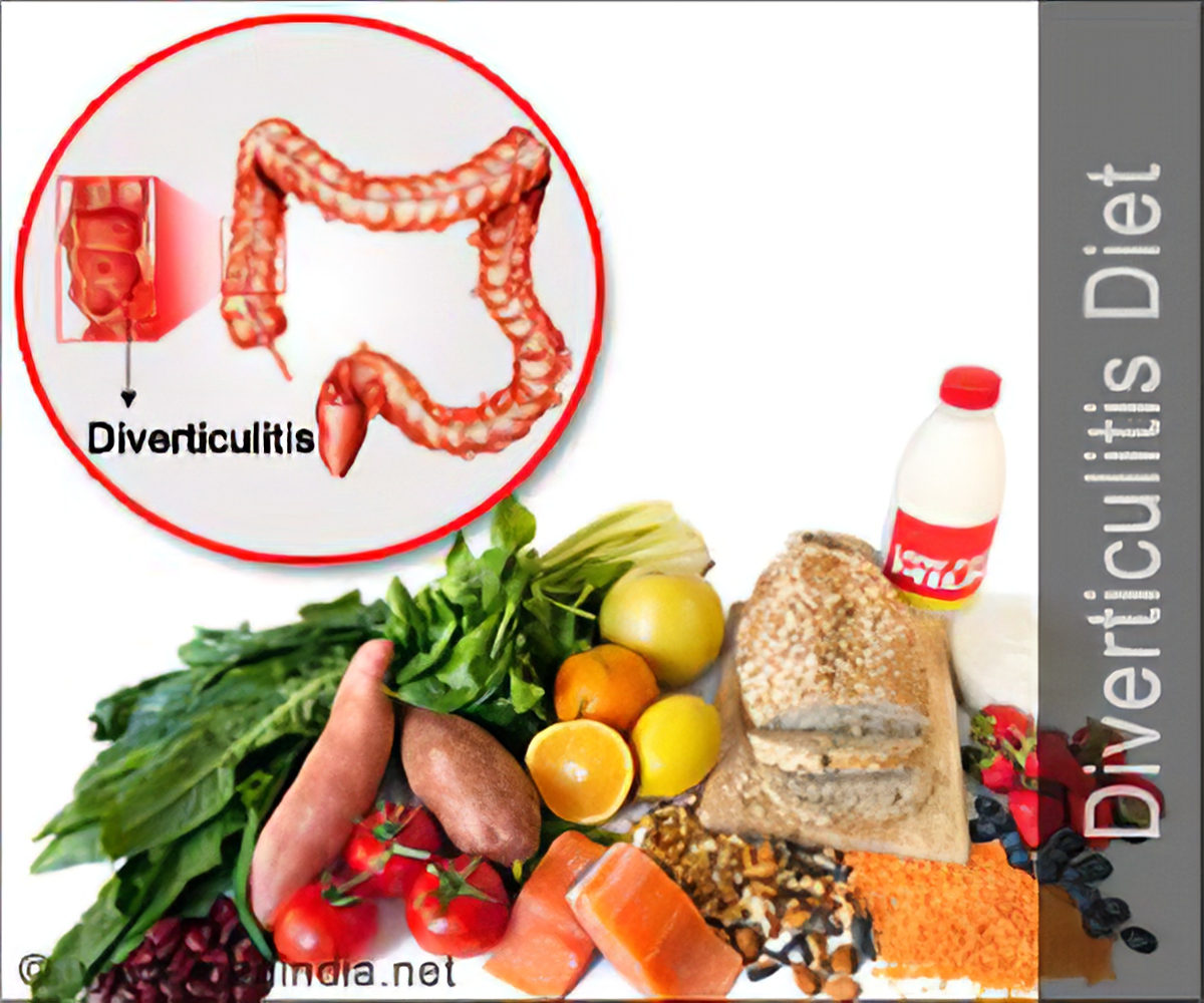 what+to+eat+diverticulitis+flare