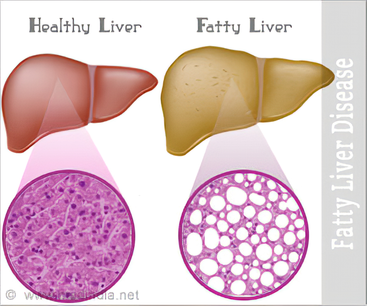 List of drugs/medicine used for Fatty Liver : A Growing