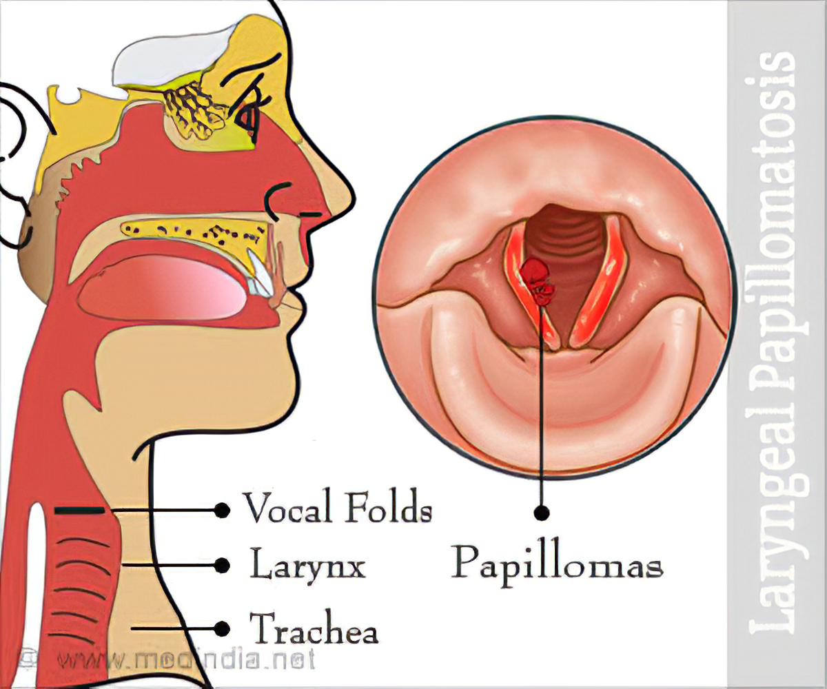 laryngeal papillomatosis description