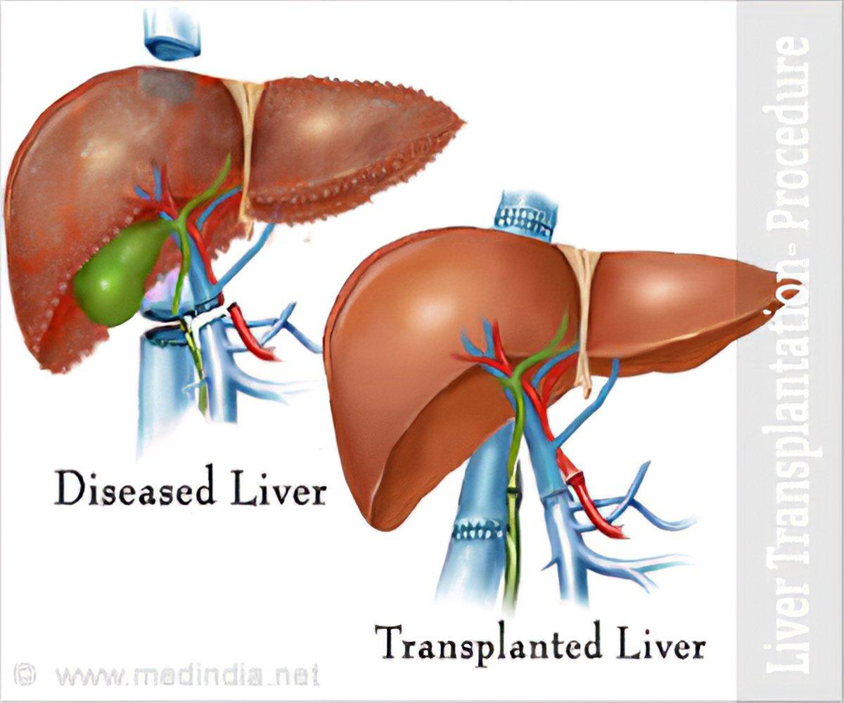 Liver Transplantation Part 1: Procedure and Techniques