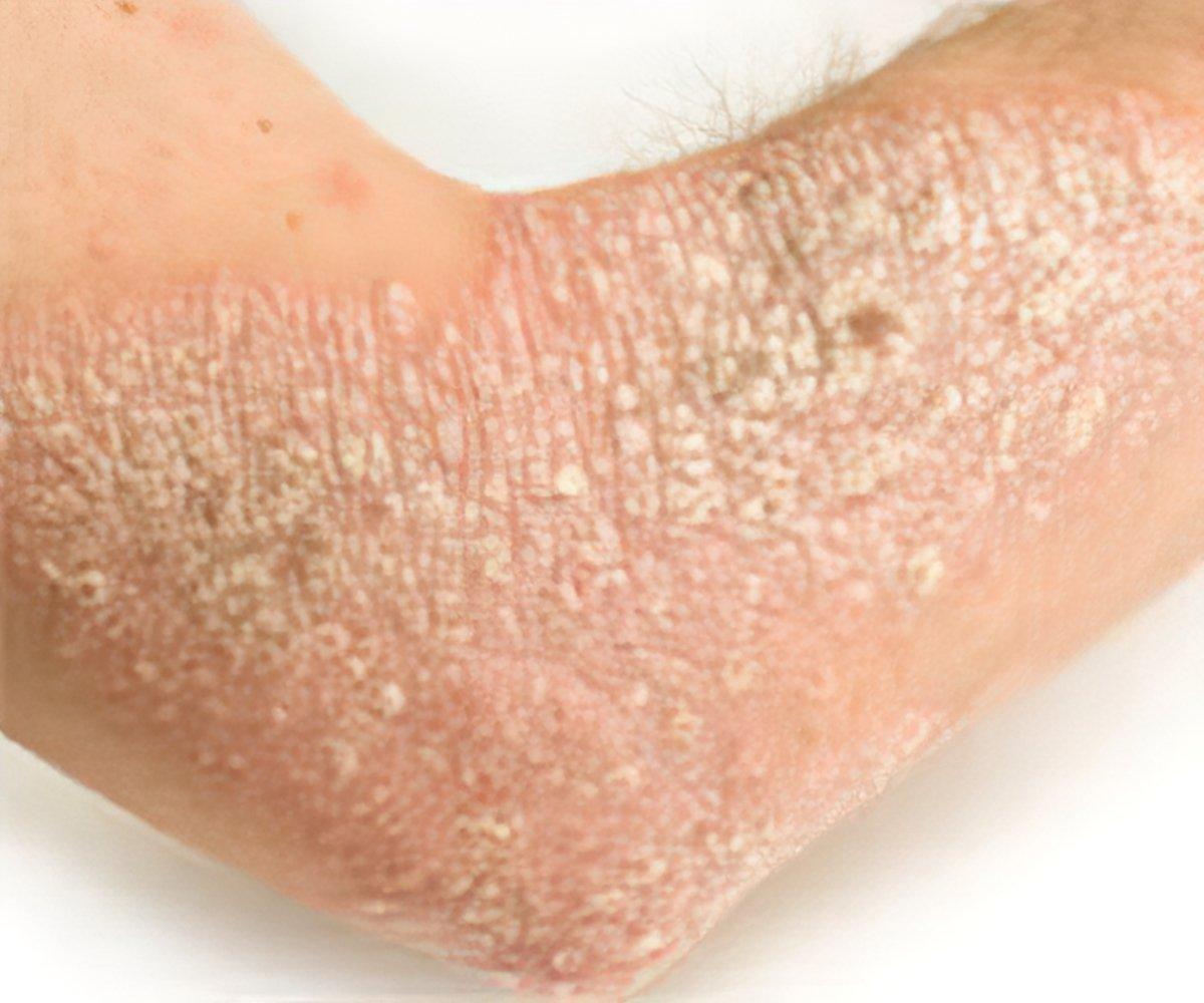 psoriasis skin disease treatment in hindi mumiyo a pikkelysmr kezelsben