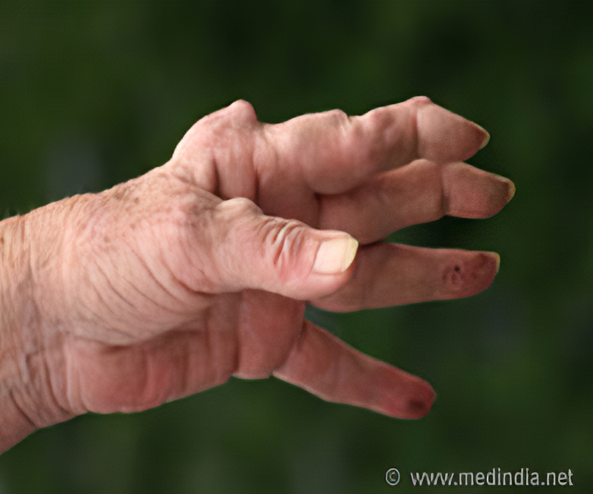 List of drugs/medicine used for Rheumatoid Arthritis