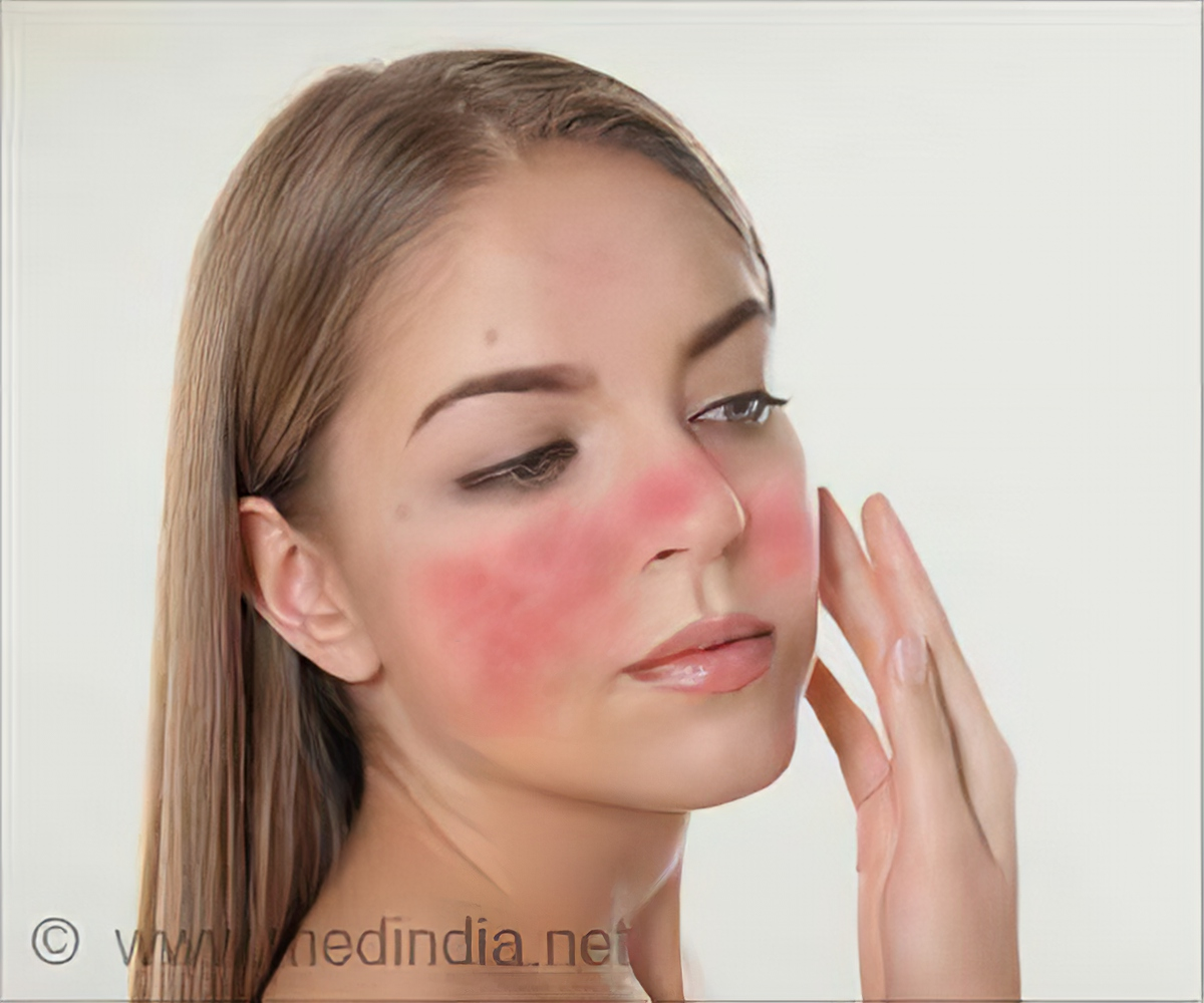 Rosacea Causes Types Symptoms Diagnosis Treatment Prevention