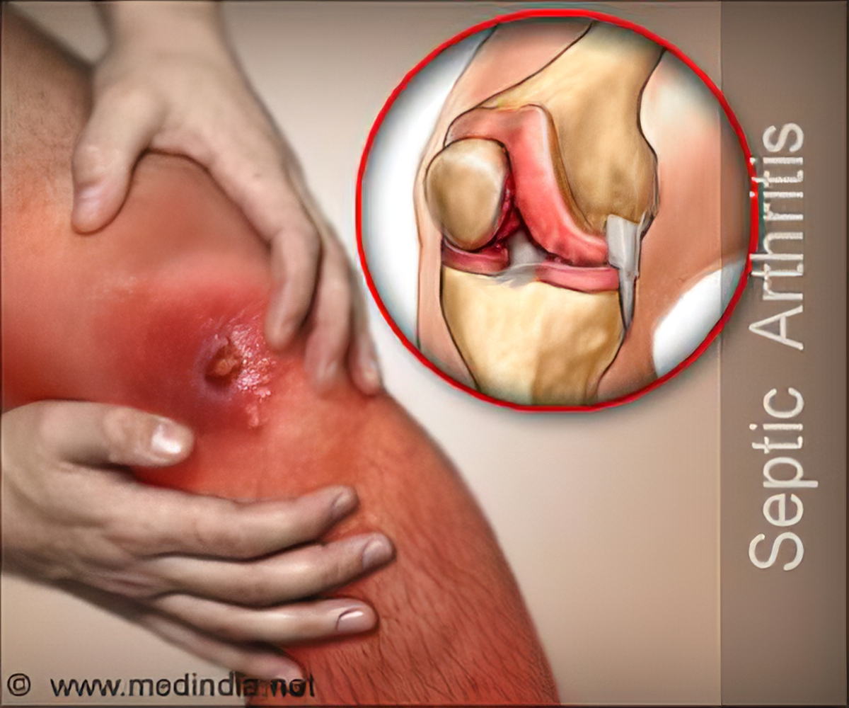 Septic Arthritis Infectious Arthritis Causes Symptoms Diagnosis Treatment