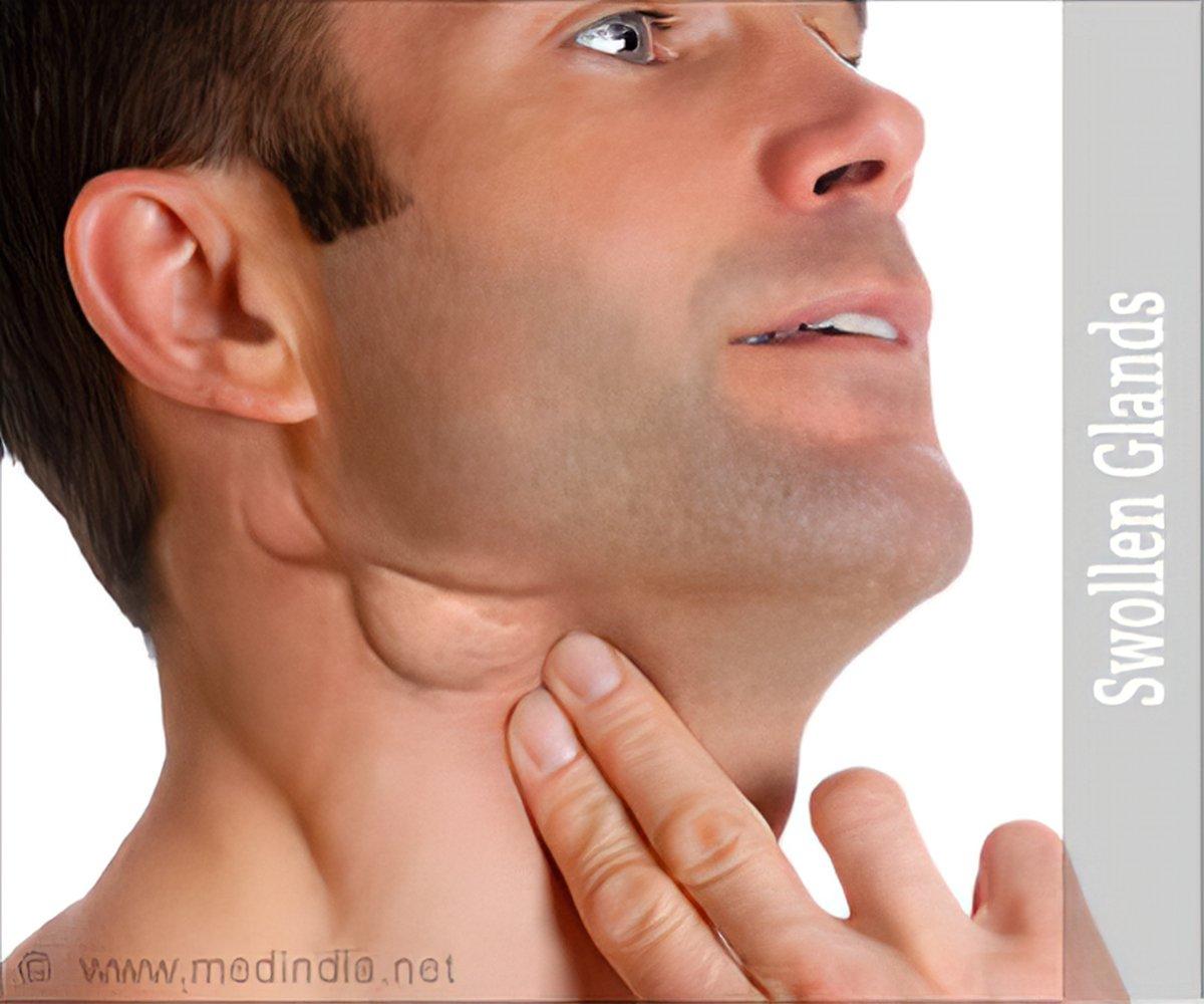 Swollen Glands - Symptom Evaluation