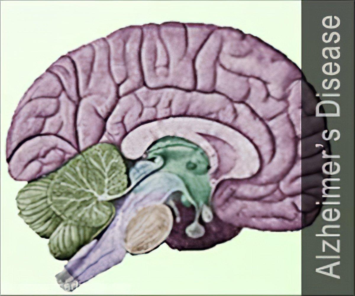 Quiz On Alzheimer's Disease