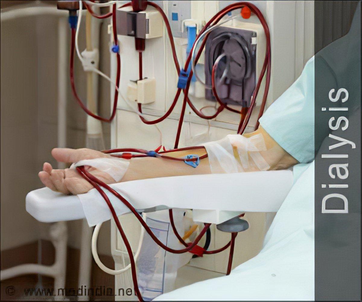 Quiz on Dialysis
