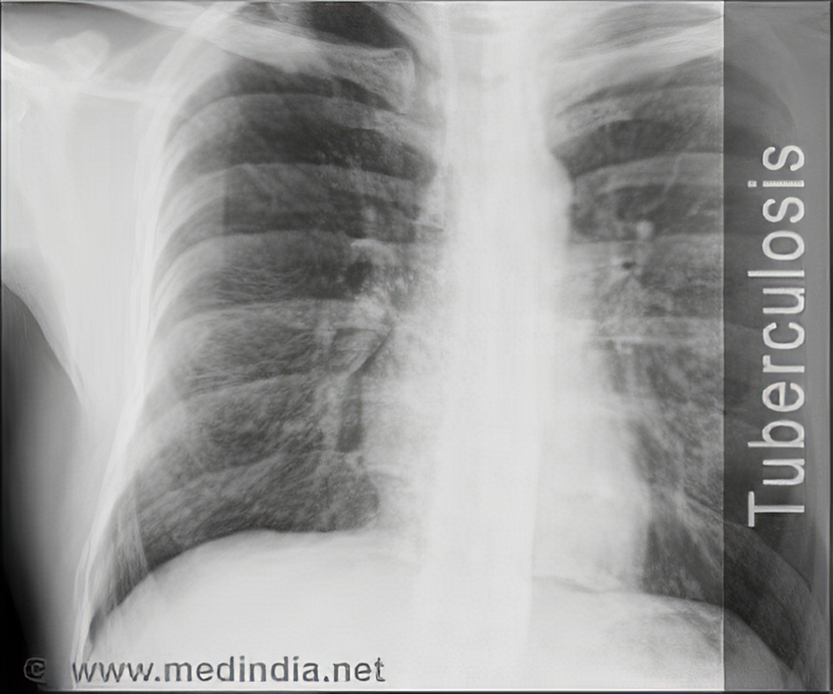 Quiz on Tuberculosis