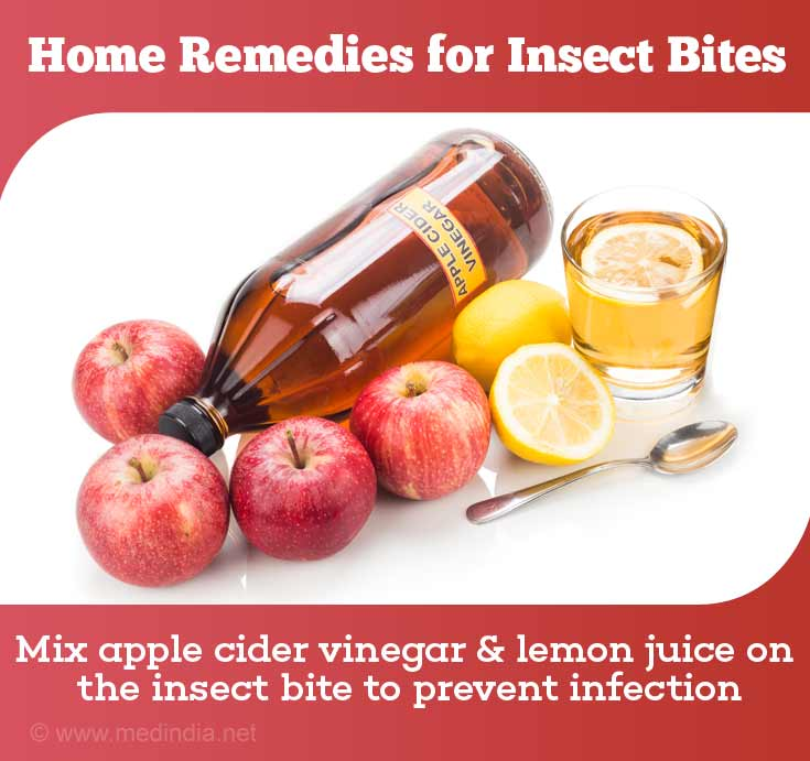 Home Remedies for Insect Bites
