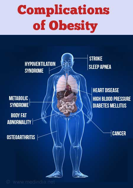 Obesity Causes Symptoms Diagnosis Complications Treatment