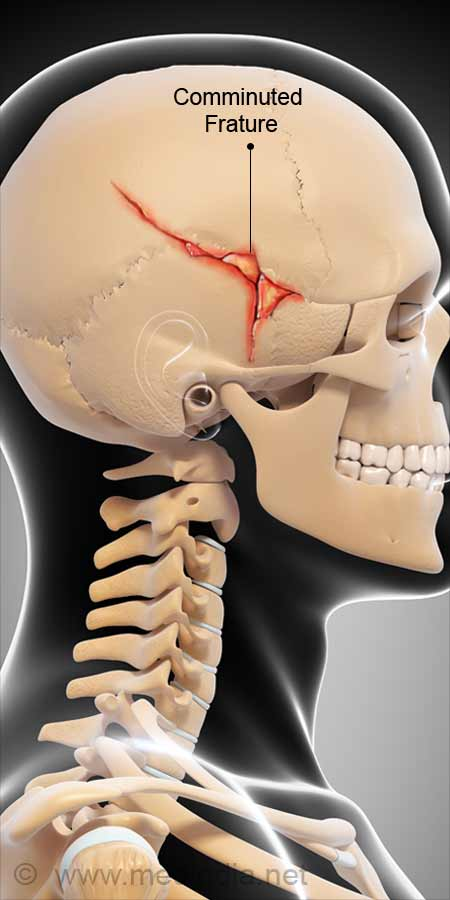 Fracture signs skull of basilar 5 signs