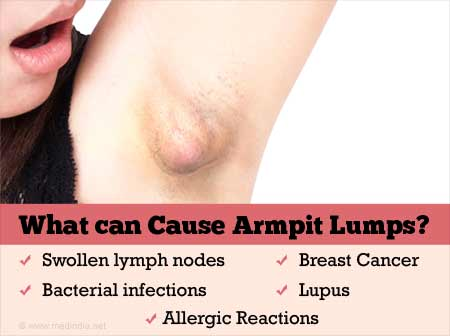 Armpit Lump Causes Consequences Diagnosis And Treatment