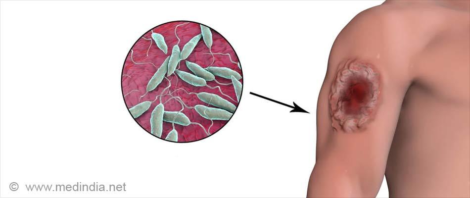 Leishmaniasis (Kala-Azar) – Symptoms, Signs, Diagnosis