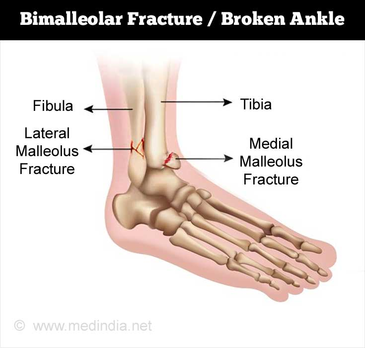 what is a bimalleolar fracture / broken ankle?