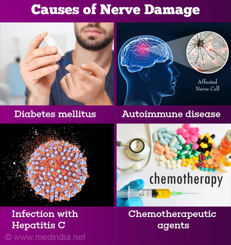 11 Alarming Symptoms & Signs You Should Look Out For Nerve