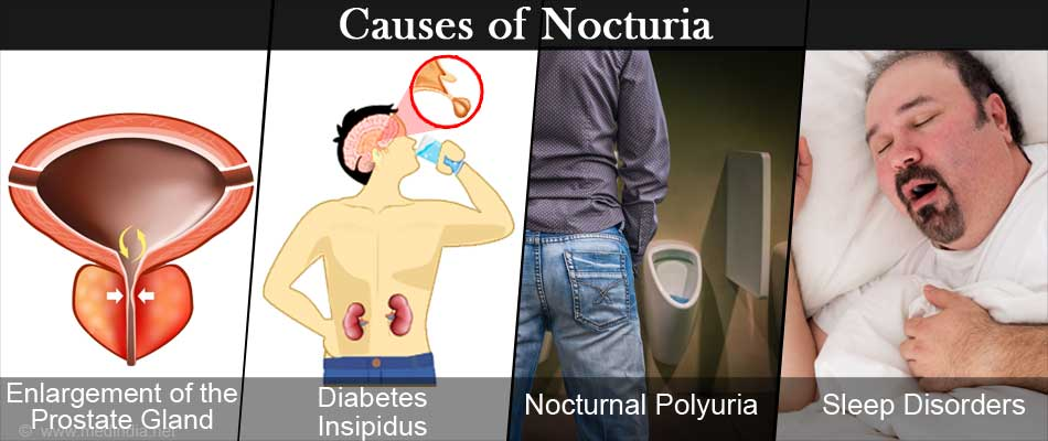 Nocturia (Waking up to Pee at Night) - Causes, Symptoms, Diagnosis &  Treatment