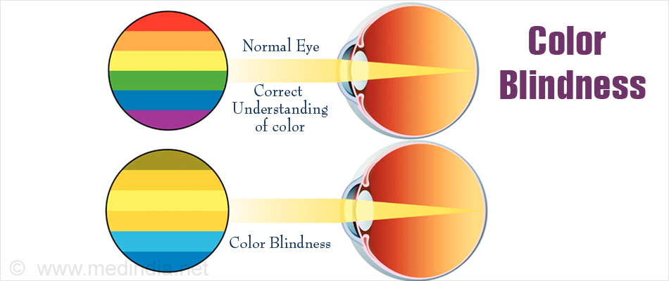 Color Blindness Types Causes Symptoms Diagnosis