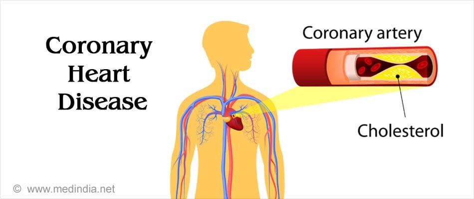 Coronary Heart Disease - Causes, Symptoms, Risk Factors