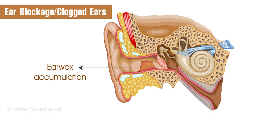 Ear Blockage | Clogged Ears - Causes, Symptoms, Diagnosis