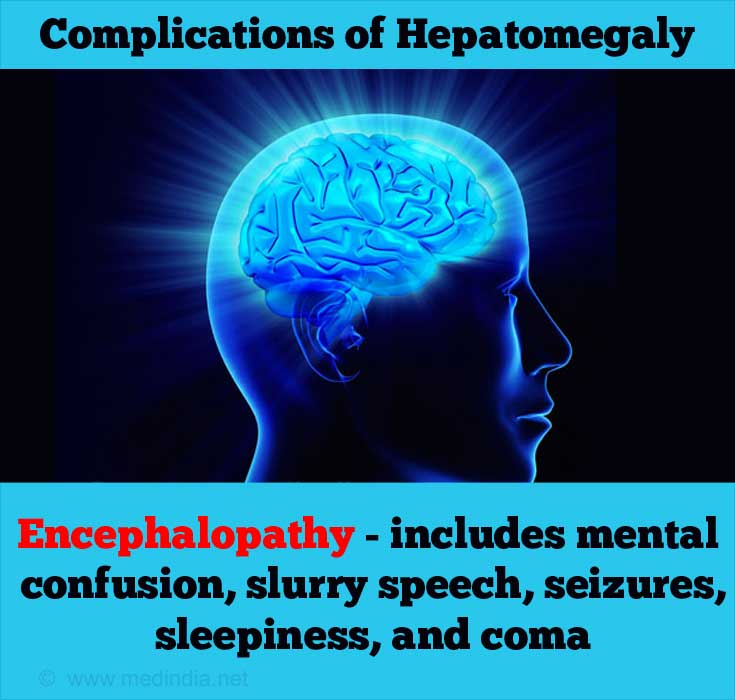 Hepatomegaly - Causes, Symptoms, Diagnosis, Treatment