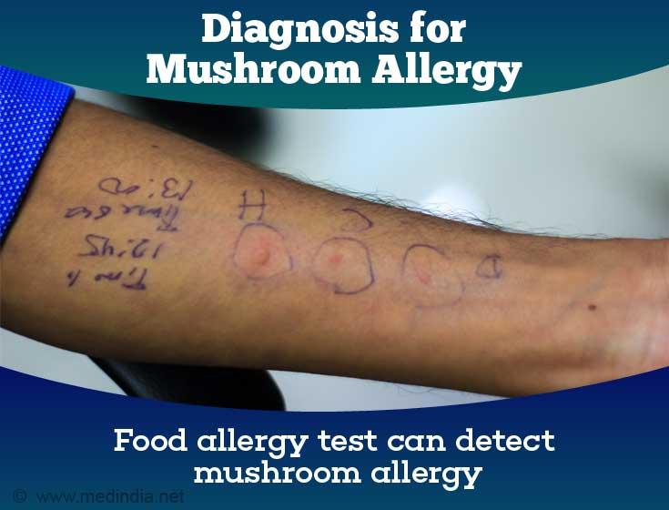Mushroom Allergy - Causes, Symptoms, Diagnosis, Treatment, Prevention