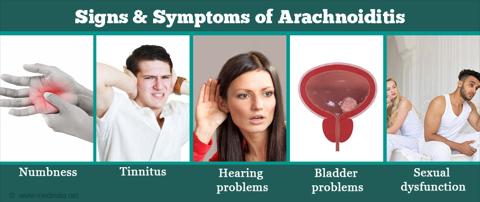 Arachnoiditis - Types, Causes, Symptoms, Risk Factors