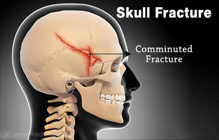 Skull Fractures – Types, Symptoms, Signs, Diagnosis