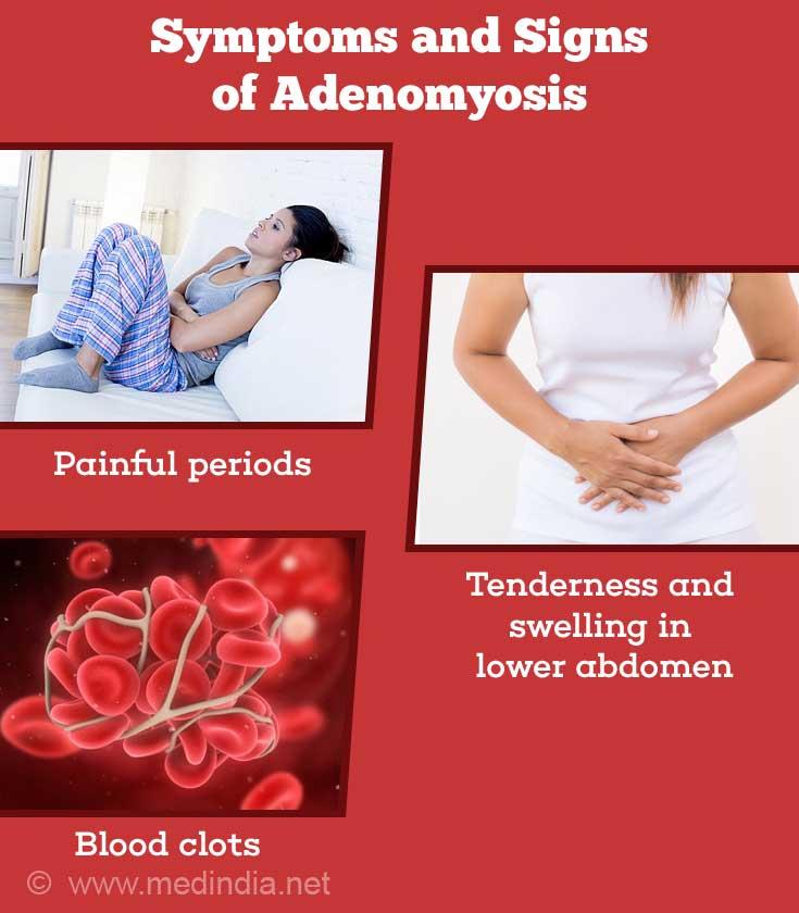 adenomyosis and sex bleeding in Huntsville