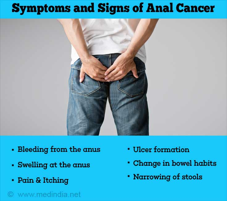 what-are-symptoms-of-anal-cancer-orgy-galleries-free