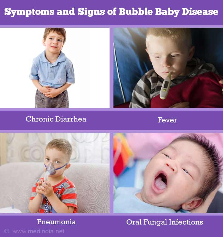 Symptoms and Signs of Bubble Baby Disease