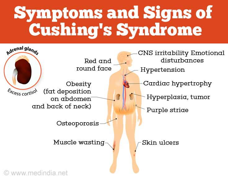 Cushing's Syndrome - Causes, Symptoms, Diagnosis and ...
