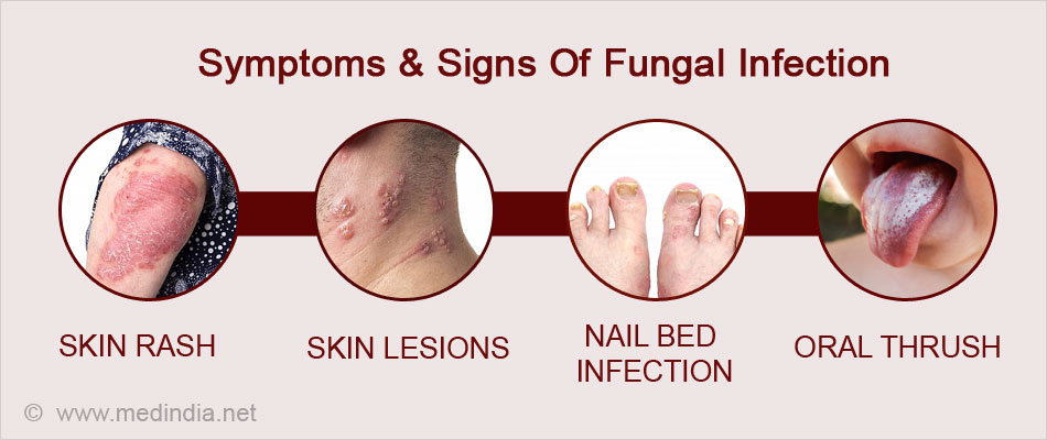 What Are The Symptoms And Signs Of Fungal Infections