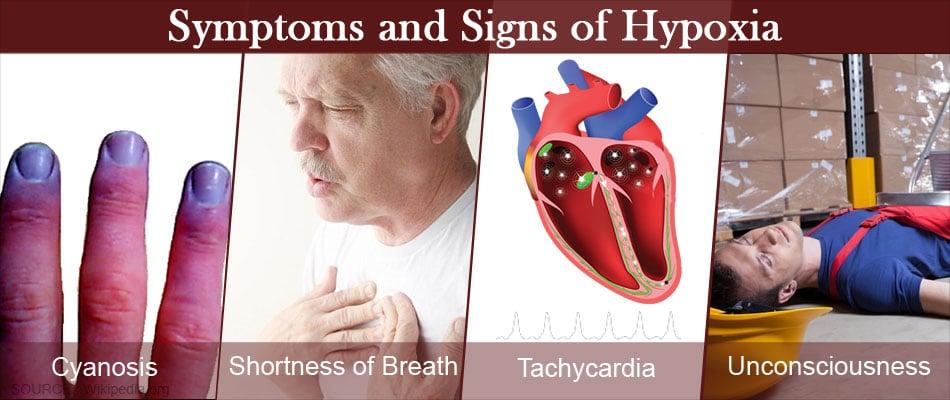 Hypoxia - Types, Causes, Symptoms, Complications, Diagnosis