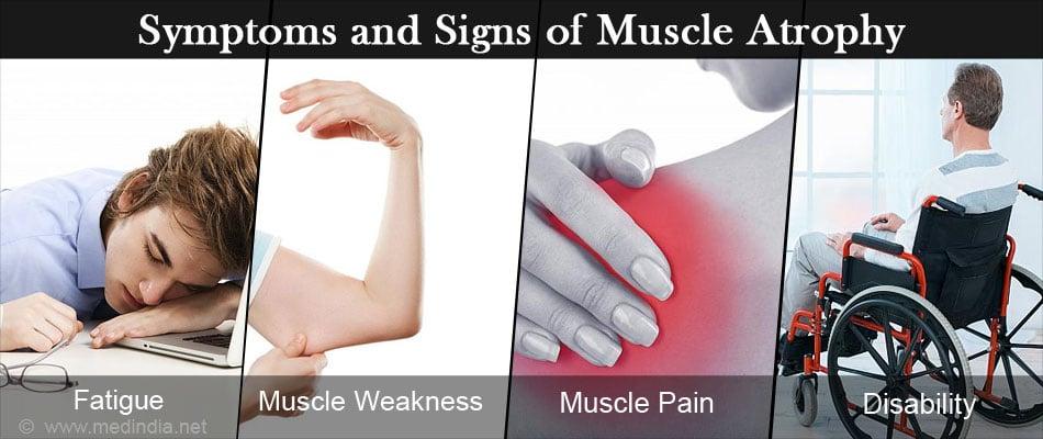 Muscle Atrophy - Causes, Symptoms, Diagnosis, Treatment & Prevention
