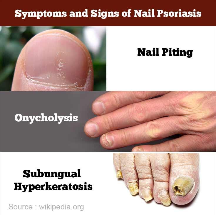 Nail fungus treatment guide dies sind todsichere schritte um sicherzustellen fungus – Artofit