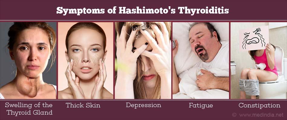 Hashimoto S Thyroiditis Risk Factors Types Causes Symptoms