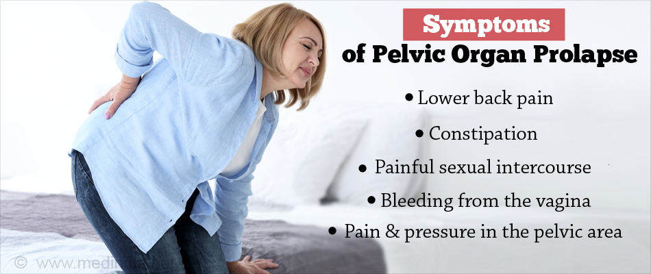 Pelvic Organ Prolapse - Types, Causes, Symptoms, Diagnosis