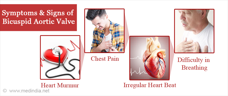 sign and symptoms of valve disease